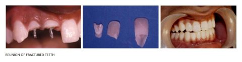 Reunion-of-Fractured-teeth